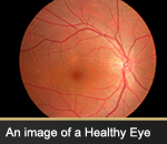 An image of a Healthy Eye